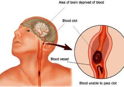 Bệnh ĐỘT QUỴ (stroke) với Thiên Khí Năng + Bấm Huyệt + Xoa Bóp Phản Xạ Học