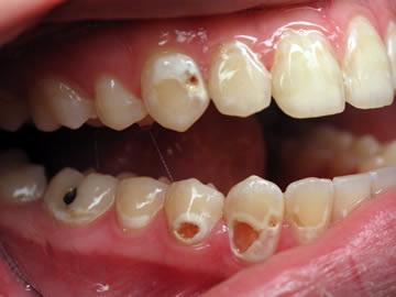 Liên quan giữa bệnh răng và bệnh toàn thân (Nhai súc dầu 3)